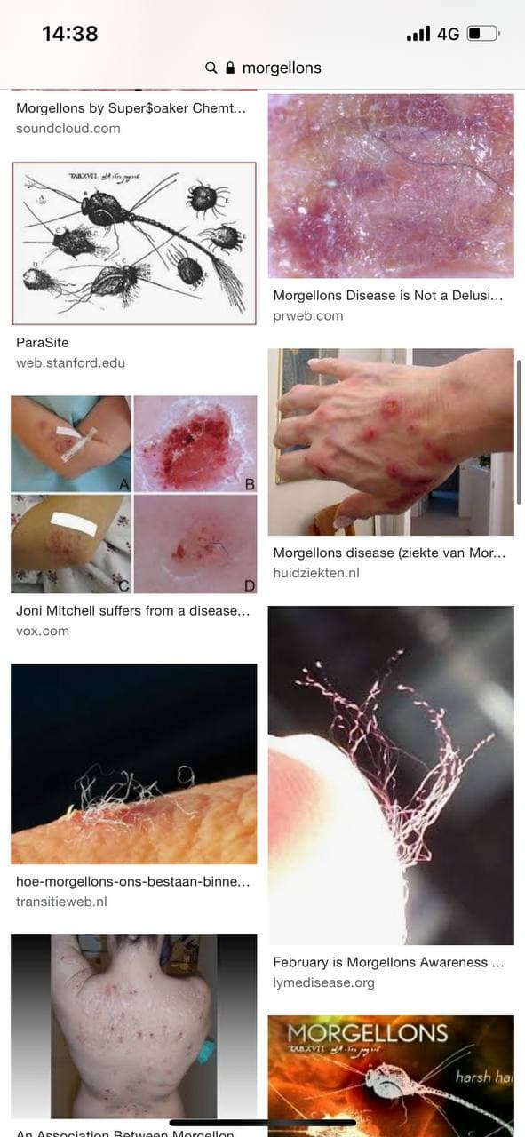 morgellons wonden.jpg